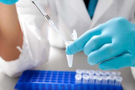 Laboratorio de micro pipeta gotas de la solución biológica en Eppendorf