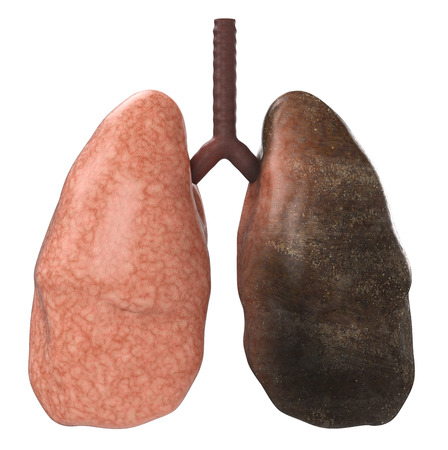 3d rendering healthy lung and black lungs