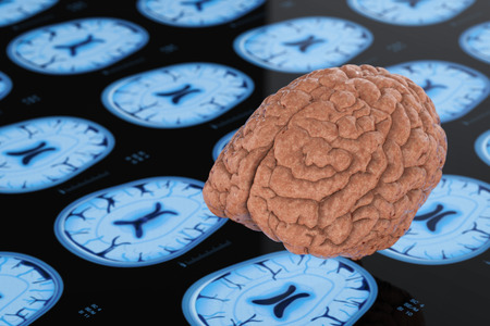 3d rendering human brain with x-ray brain background