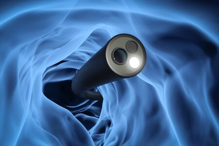 Colonoscopy technology concept with 3d rendering x-ray endoscope inside of intestine Stok Fotoğraf