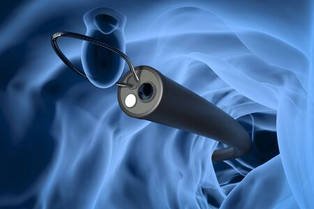 3d rendering x-ray endoscope remove colonic polyp with wire loop