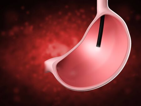 3d rendering endoscope in stomach with shining light