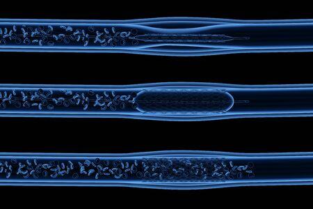 Procedimiento de angioplastia con balón de rayos X de renderizado 3D con stent en la vena
