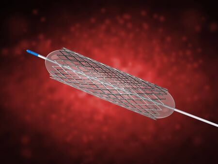 3d rendering stent or catheter for balloon angioplasty Stock Photo