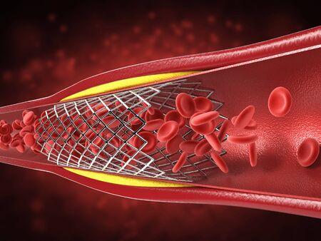 3d rendering balloon angioplasty procedure with stent in vein