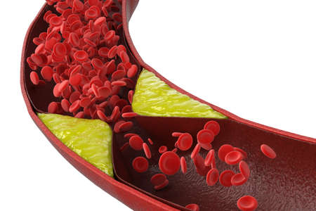 3d rendering atherosclerosis with cholesterol blood or plaque in vessel cause of coronary artery disease