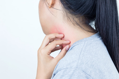 Young woman scratch the itch on her neck, Healthcare concept.