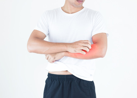 Young men scratch the itch on arm surface, Healthcare concept.