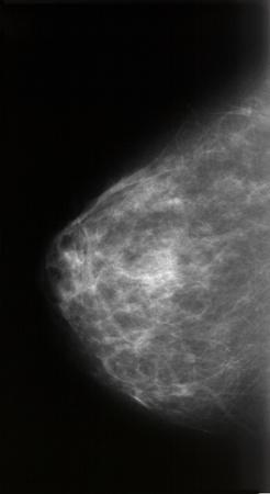 Mammographie Banque d'images