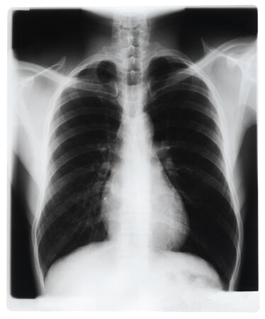 x rays negative: Chest x-ray