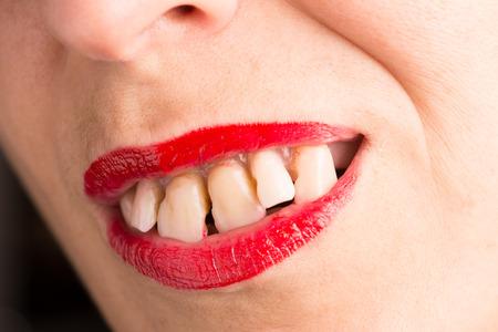 dientes sucios: dientes espaciados sucios, feos Con dientes