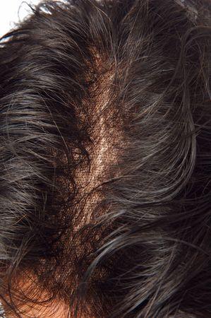 peruke: toupee detail on the man head