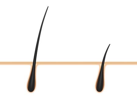 hair follicle.cross section. Reklamní fotografie - 54382879