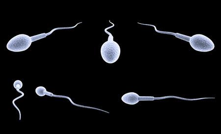 Cellule de sperme isolée sur fond noir. Banque d'images - 82238520