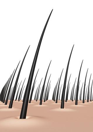 scalp Stockfoto