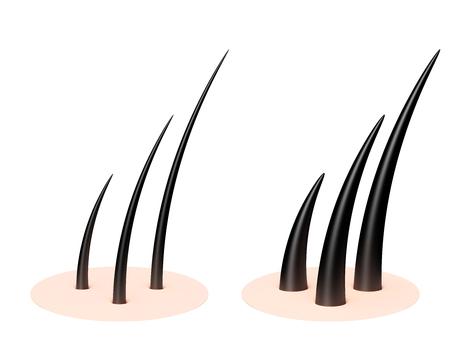 Human scalp Zdjęcie Seryjne