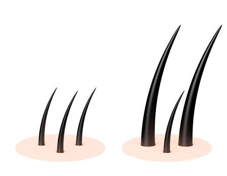 Human scalp Stock Photo