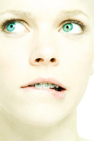 Teenage girl with braces biting lip, extreme close-up
