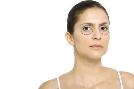 oneself: Woman with plastic surgery markings under eyes, looking at camera LANG_EVOIMAGES