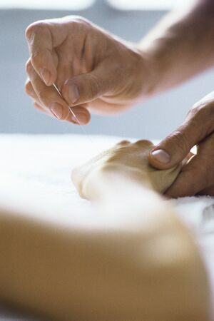 holistic view: Acupuncture needle being inserted in patients hand