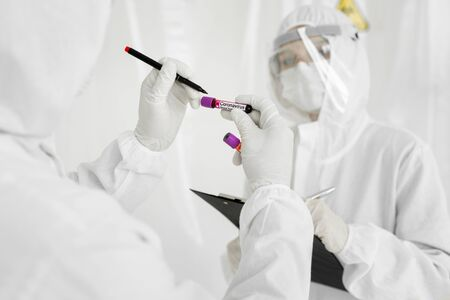 2019-nCoV Coronavirus. Positive Blood Sample in Doctors Hand. Epidemiologist holds a test tube containing a patients that has tested positive for coronavirus.