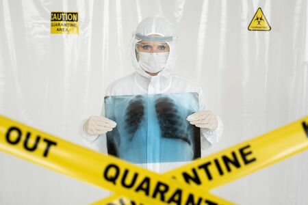 Closeup shot of young Doctor holding x-ray of lungs over chest. Yellow line Keep Out Quarantine. Coronavirus concept