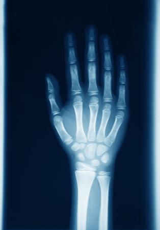 an original radiography of human hand Stock Photo