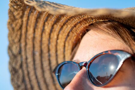 Forehead of a woman with freckles in direct sunlight, close-up view. UV protection, sun radiation concept: skin with lentigo in the summer sun Stock Photo