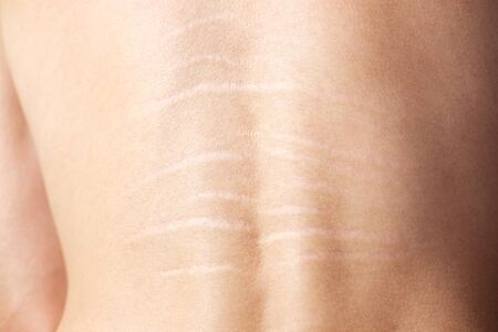 Close up view of the back with stretch marks on the skin. The concept of impaired skin elasticity during puberty