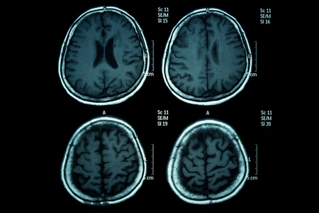 x ray image: X-ray image of the brain computed tomography