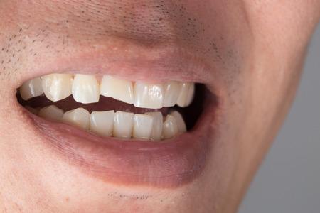 치아 손상 또는 남성에서의 치아 침입. 손상된 치아의 외상 및 신경 손상, 영구적 인 치아 손상.