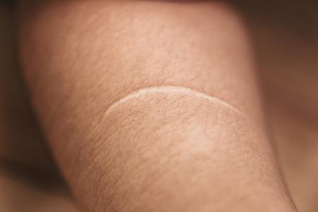 ケロイド。醜い女性の腕の皮膚の傷傷を切ったナイフから