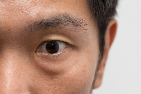 asian male man face oily skin with big eye bag at the left eye Imagens