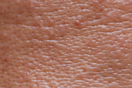 Rostro masculino piel grasa poros grandes con textura de acné para fondo