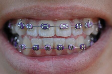 straighten: smile with confidence