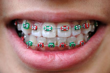 orthodontic: colorful brace of festive Christmas red and green color