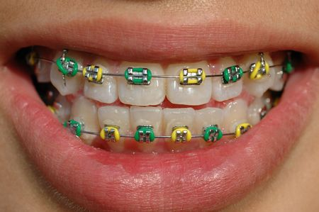 brace: colorful braces of green and gold color Stock Photo