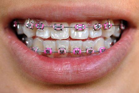 straighten: pink braces Stock Photo