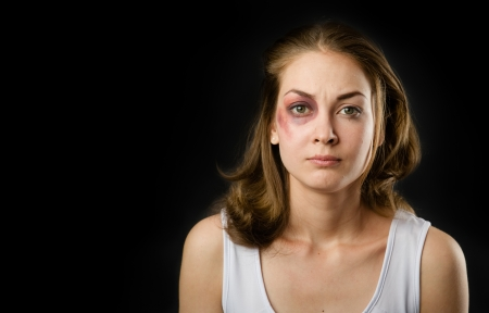 abuse young woman: woman victim of domestic violence and abuse  on dark background Stock Photo