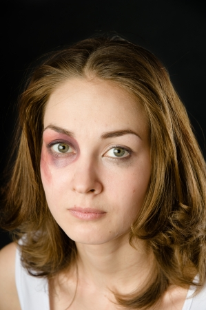 woman victim of domestic violence and abuse  on dark background photo