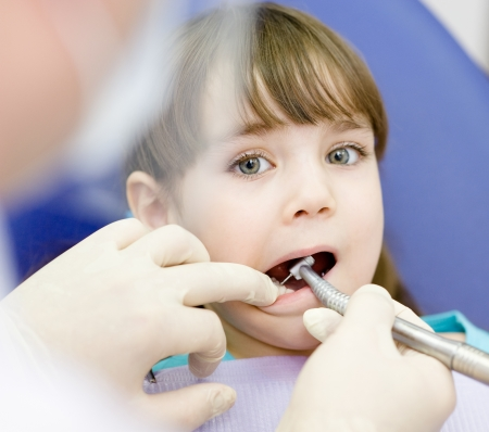 dentist drill: little girl with open mouth during drilling treatment at the dentist