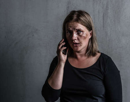 Woman victim of domestic violence and abuse asks for help by phone. Empty space for text. Imagens