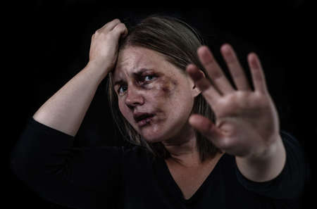 Crying woman victim of domestic violence and abuse showing a stop sign. Isolated on dark background. Imagens - 155155180