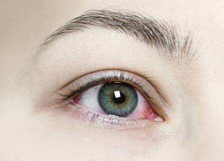 Cerca de un ojo rojo intenso inyectado en sangre. Blefaritis viral, conjuntivitis, adenovirus. Ojo irritado o infectado