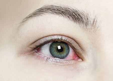 Gros plan d'un œil rouge injecté de sang sévère. Blépharite virale, conjonctivite, adénovirus. Oeil irrité ou infecté