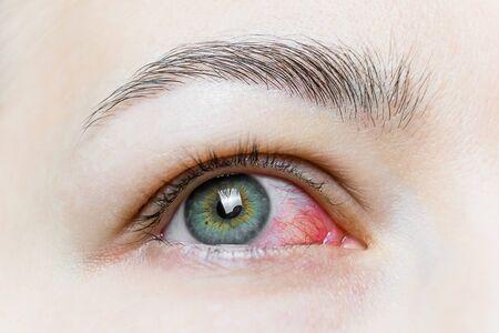 Close up of a severe bloodshot red eye. Viral Blepharitis, Conjunctivitis, Adenoviruses. Irritated or infected eye.