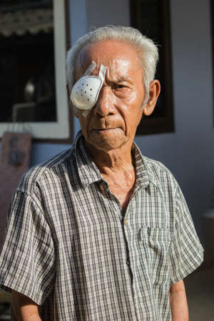 My father was recovering from cataract surgery a month ago.
