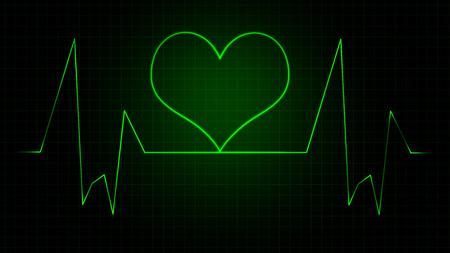 visual perception: Heart monitor graph