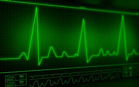 taking pulse: ECG Electrocardiography