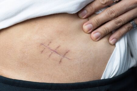 Scar of appendix pain and appendicitis inflammation disease close up 스톡 콘텐츠